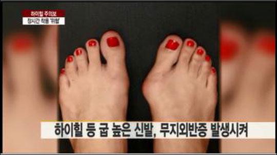 굽높은 신발을 오래 신을 경우 여러가지 발과 관련된 질병에 노출된 위험성이 큰 것으로 알려졌다. 연합뉴스보도 화면캡처