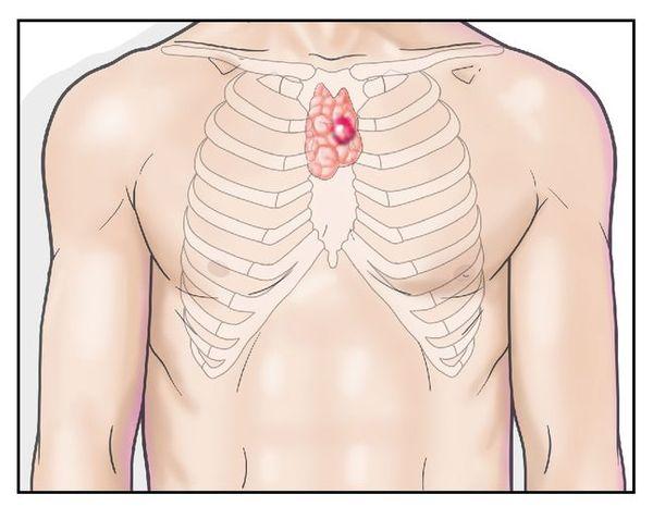 흉선암의 5년 생존률은 초기의 경우 74~90%로 높다. 다만 3기(33~50%)나 4기(24~40%)로 진행할수록 생존율이 급격히 낮아지므로 초기에 발견해 치료하는 것이 중요하다. ⓒ고려대구로병원