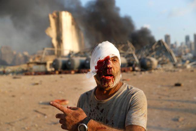 4일(현지시간) 레바논 수도 베이루트 항구에서 대규모 폭발사고가 일어나 한 부상자가 현장에서 걸어 나오고 있다. ⓒAP/뉴시스