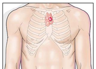 흉선, 퇴화 안 하면 흉선암과 중증근무력증 원인될 수 있어