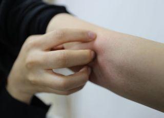 [데일리안 닥터] 건조한 환절기, 피부 건강에 적신호 켜진다